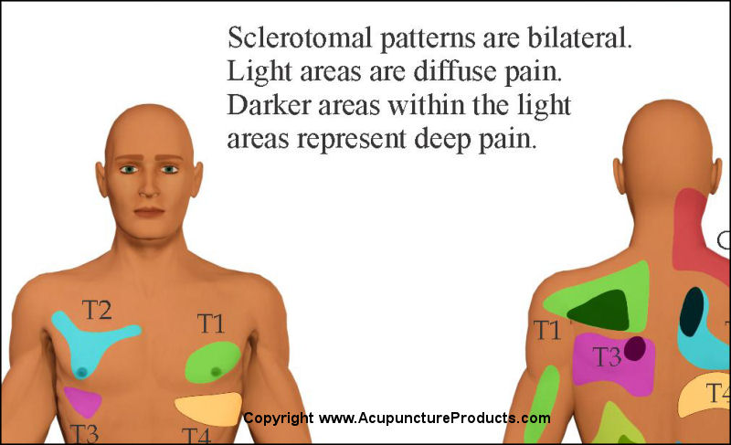 Sclerotomal Pain Referral Patterns