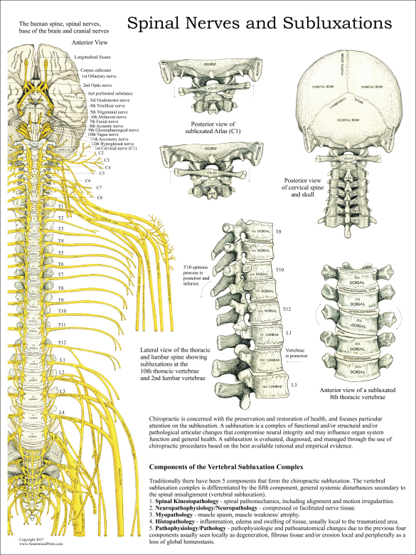 Chiropractic Subluxation Complex Poster